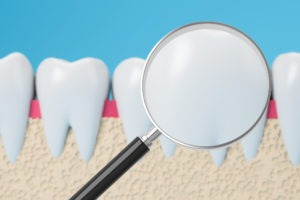 White fillings are indistinguishable from tooth enamel