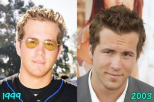Shocking details about Ryan Reynold's plastic surgery