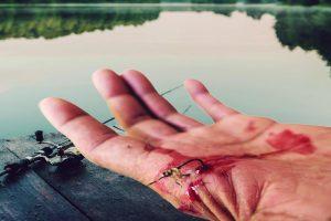 Fishhook in Hand - Fishhook Removal