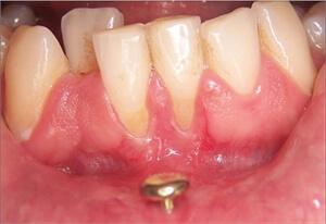 piercing alla lingua Rischi per la salute orale di 6