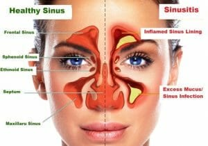 Sinusitis pressure points how to relieve sinus pressure and headache