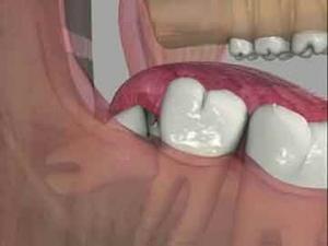 جراحی دندان عقل دکترمجید قیاسی بهترین دندانپزشک زیبایی درمشهد