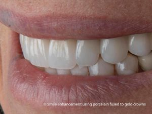 North Shore Prosthodontics