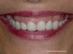 Crown lengthening for a gummy smile