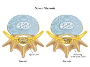 Spinal stenonsis