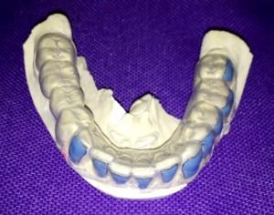 Blanchiment des dents Empreinte