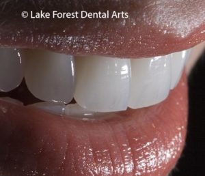 Cosmetic dental treatment planning