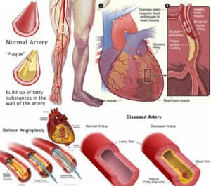 PAD supplements for clogged arteries