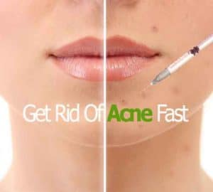 acne treatments toronto