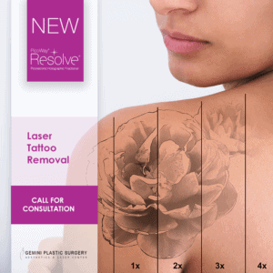 Tattoo Laser Hair Removal in Rancho Cucamonga