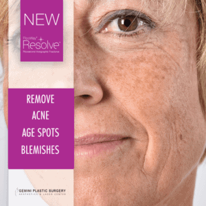Picoway Laser Treatment: Remove Acne, Age Spots, Blemishes