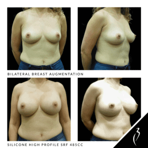 Before After Breast Implants · Rancho Cucamonga · Case Study 5022