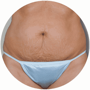 Patient Before Having Her Abdominoplasty - Global Medical Care Tummy Tuck