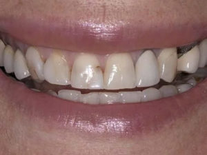 Dental health changes with age