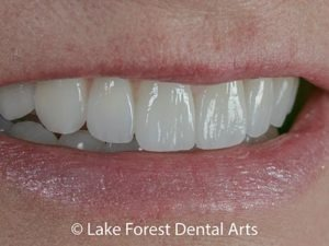 Prepless veneers