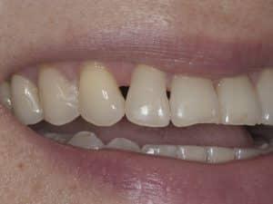 Lost gum from between teeth