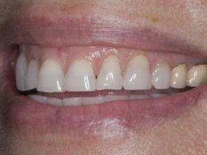 Heavy tooth wear