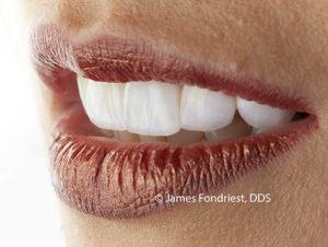 Ceramic teeth