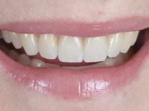 Smile Transformation planning
