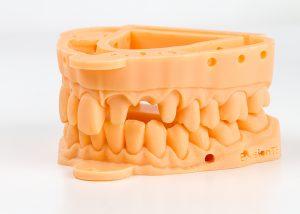 3d printed dental models upper and lower