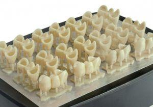 Coronas dentales impresas 3D