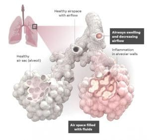 comparison between healthy and infected alveoli of human lunge