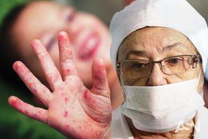 эпидемия кори в москве