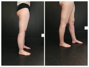lipoedème et liposuccion WAL jambes