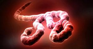 Ébola: una plaga contemporanea – Cartas del Dr. Boix – XX