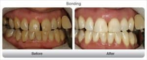 before and after pictures of cosmetic bonding for teeth in dublin