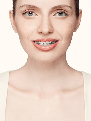 braces for all ages