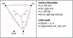 relationship between limb leads and surface electrodes are defined by Einthoven's triangle