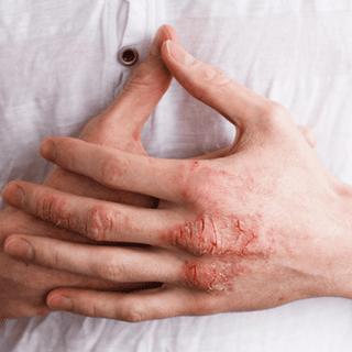 ekcéma lelki okai lábon hogyan lehet eltávolítani a bőrpírt a pikkelysömör kezein