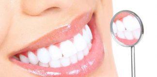 lo sbiancamento dei denti