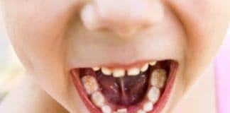 carie su denti da latte