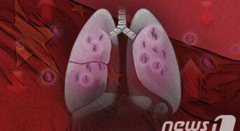 코로나 완치 환자 10명 중 8명 폐손상 발견