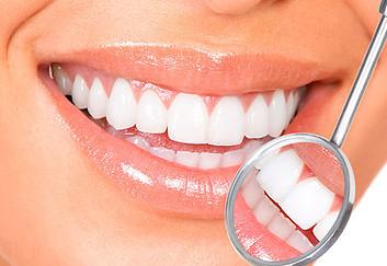 Ecco Come avere denti più bianchi Sbiancamento dentale professionale con Mascherine Personalizzate 1