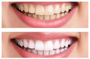 sbiancamento-dentale-prima-dopo-2