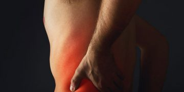 Chiropractic Treatment for Sciatica: 10 Things You Should Know
