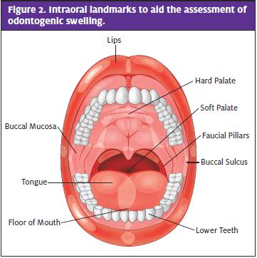 Odontogenic Infection; Assessment of Odontogenic swelling