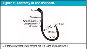 Anatomy of the Fishhook