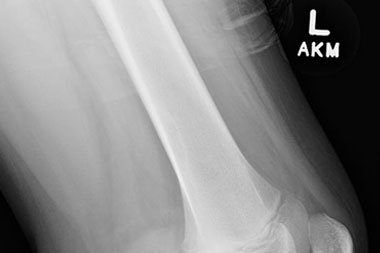 A 12-Year-Old Male with a 6-Month History of Knee Pain and Swelling