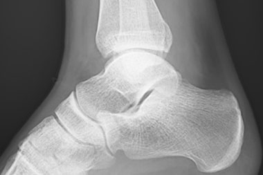 A 19-Year-Old with Acute Ankle Pain While Playing Hockey