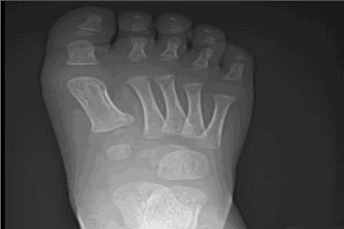A 2-Year-Old with Foot Pain After Jumping Off a Bed