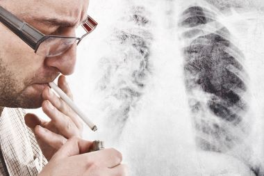 Advise Patients: A Worldwide Respiratory Pandemic is a Bad Time to Start Smoking Again