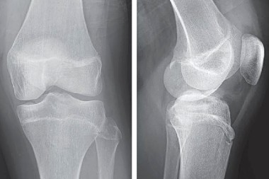 A 13-Year-Old Boy with Knee Pain After a Fall