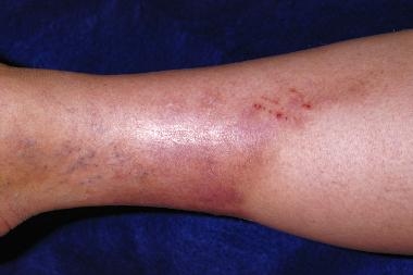 A 46-Year-Old Woman with a Painful, Erythematous Plaque on Her Leg