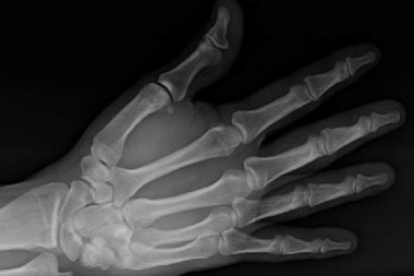 A 36-Year-Old Man with Wrist Pain After a Traumatic Impact