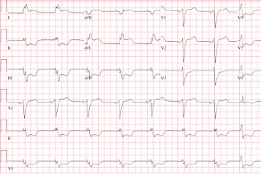A 70-Year-Old Female with Nonradiating Chest Pain