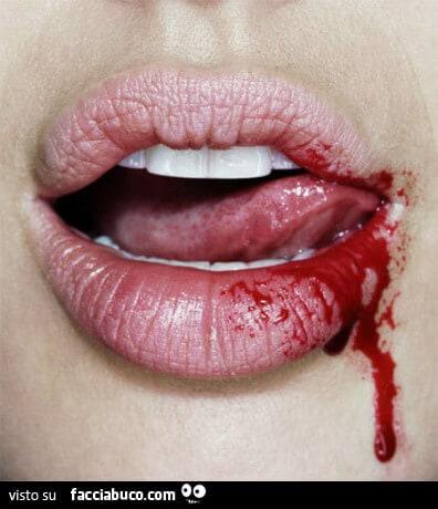 piercing alla lingua Rischi per la salute orale di 4
